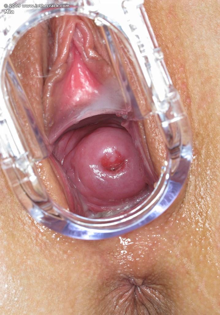смотреть строение женских гениталии у гинеколога